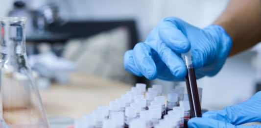 A New Drug For Blood Cancer Shows Even More Promise - Say Experts